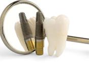 Wisdom teeth extraction in San Jose CA